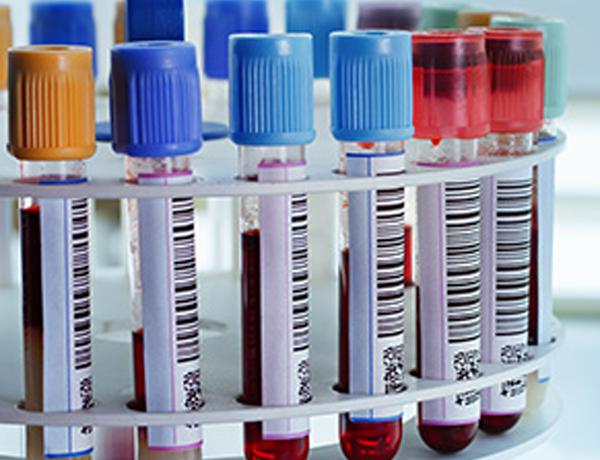 Hematological-Biochemical-Tests
